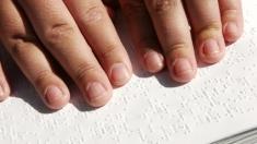 TVR Cluj susţine campania de ajutorare a copiilor cu deficienţe de vedere