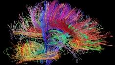 Dincolo de viitor: neuroştiinţa şi misterele creierului uman
