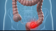 Temele emisiunii: Cancerul de colon şi Gemoterapia