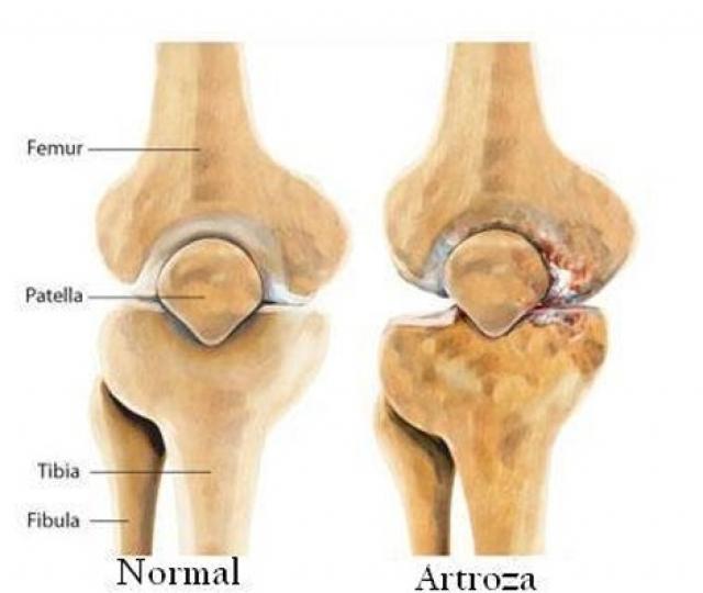 (w640) artroza