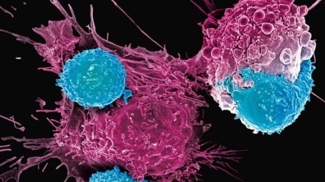 (w640) oncologie