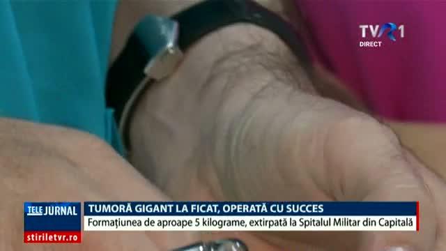 o-tumora-de-ficat-de-aproape-cinci-kilograme-a-fost-extirpata-cu-succes-la-spitalul-militar-din-capitala